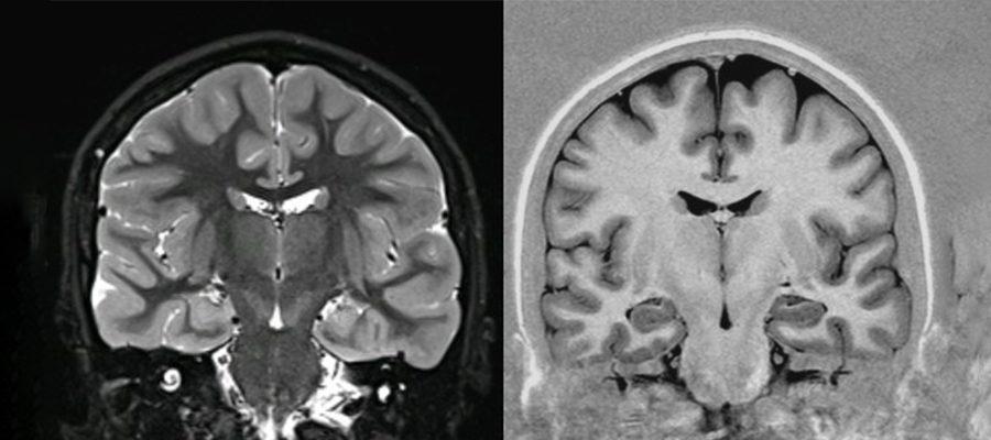 beyin emarı